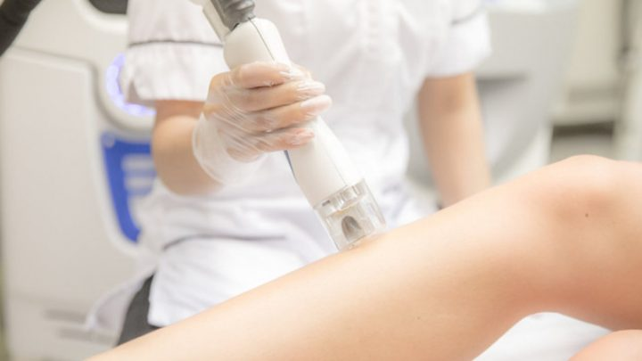 Why Winter is a Great Time for Laser Hair Removal in York PA?